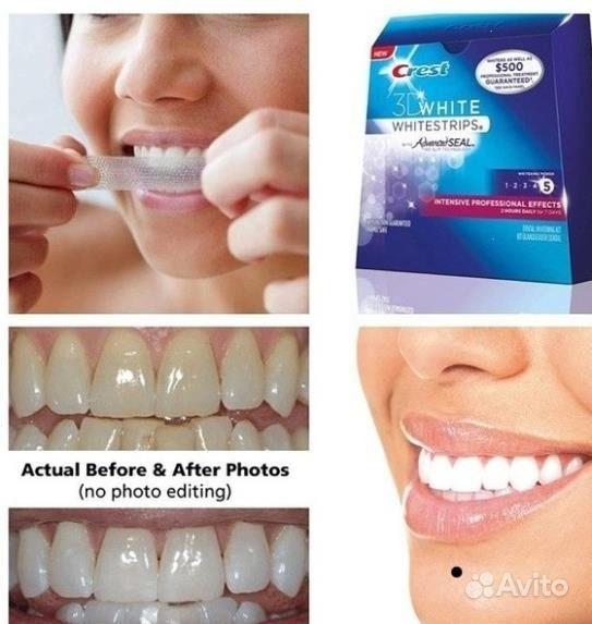 Полоски для отбеливания зубов какие лучше